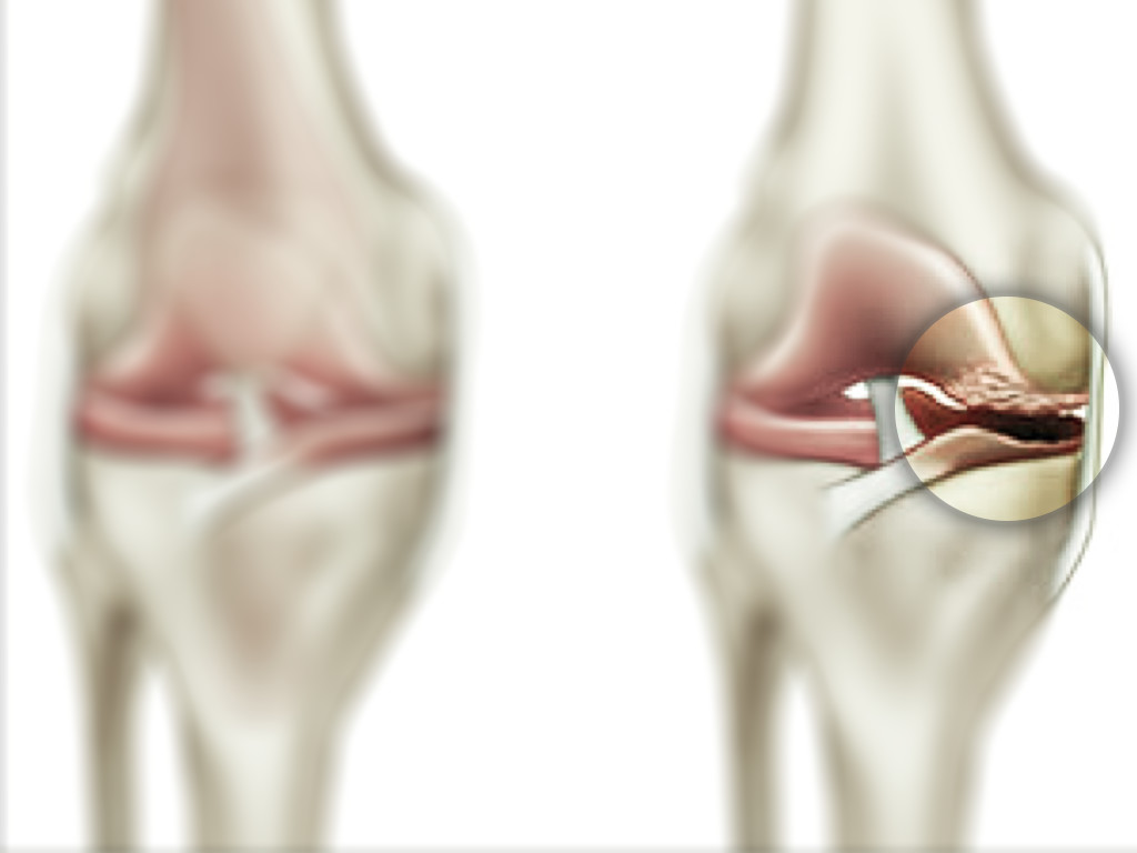 Study Confirms That Losing Weight May Save Your Knees ...
