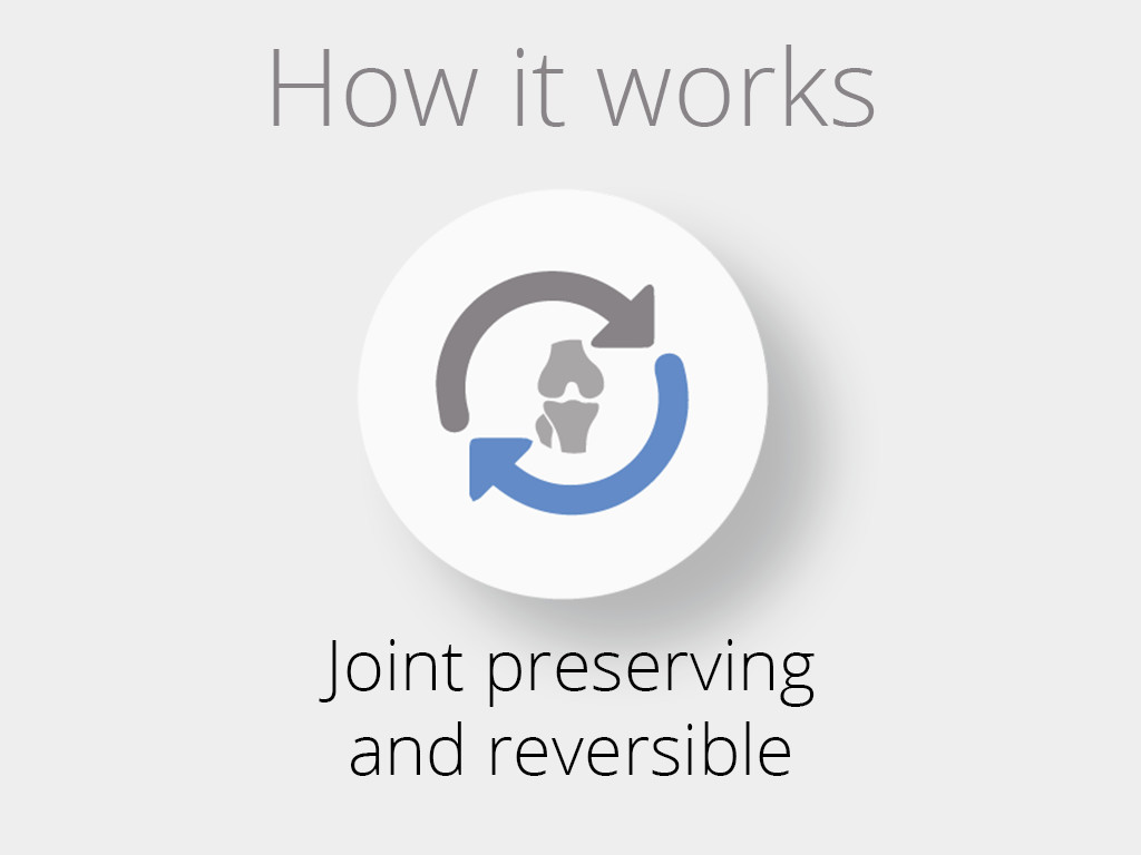 How_joint_preserving_and_reversible