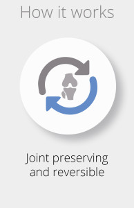 Joint preserving and reversible